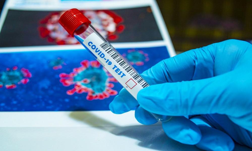 Od ponedeljka moguće testiranje na antitela koronavirusa na lični zahtev